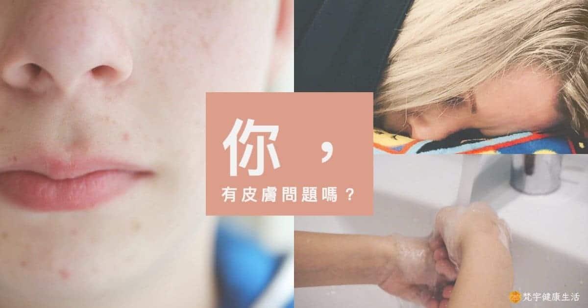 生活中常見的9個皮膚問題
